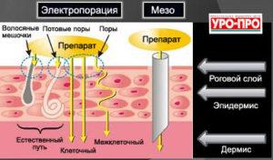 bezinektsionnaya-mezo1